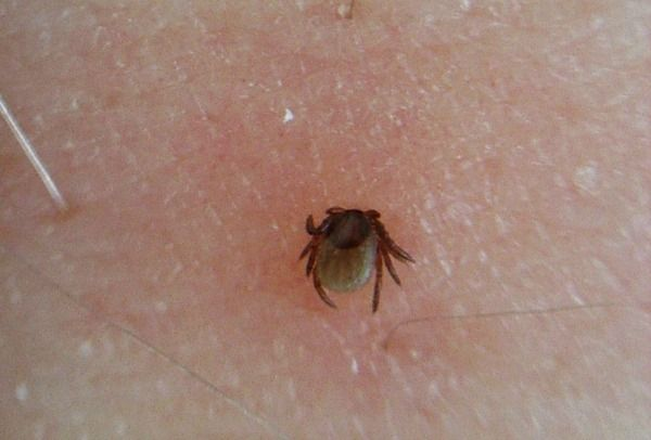 How To Get Rid Of Ticks In Home Malaysia