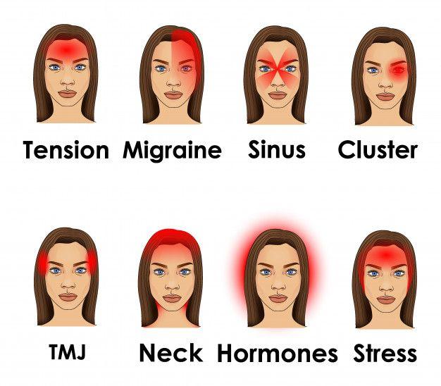 Types Of Headache Illustrated On A Woman Face | Headache ...