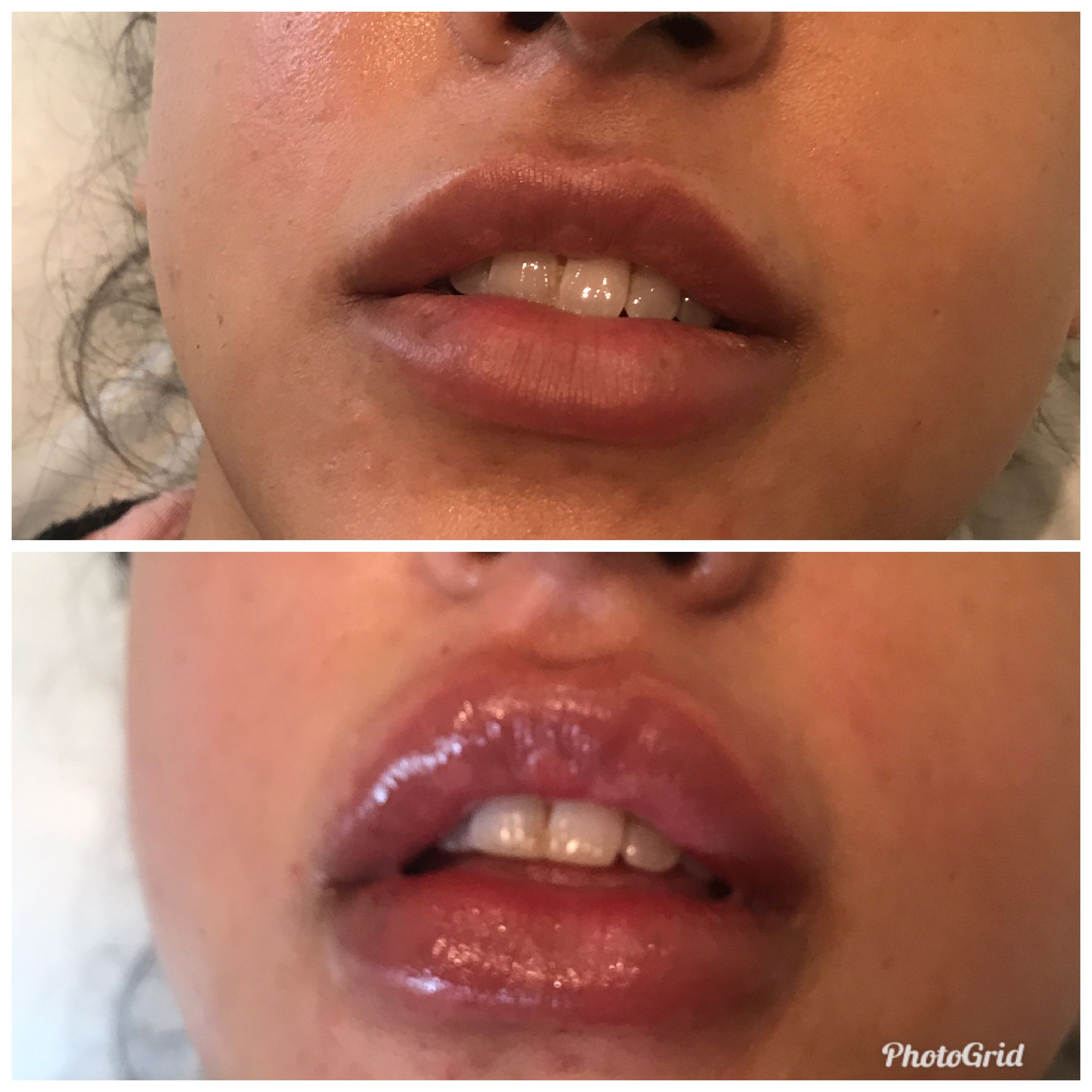 Creating a beautiful pout with 1ml of Juvederm today