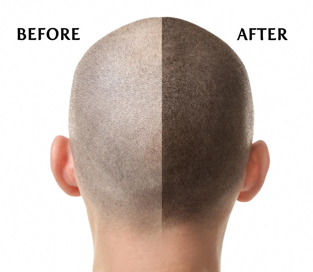 Pin By Dealing With Hair Loss On Hair Loss Advice Hair Transplant Problem Hair Loss Solve Hair Loss