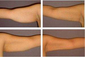 Arms Liposuction Before And After Arm Liposuction Liposuction Laser Liposuction
