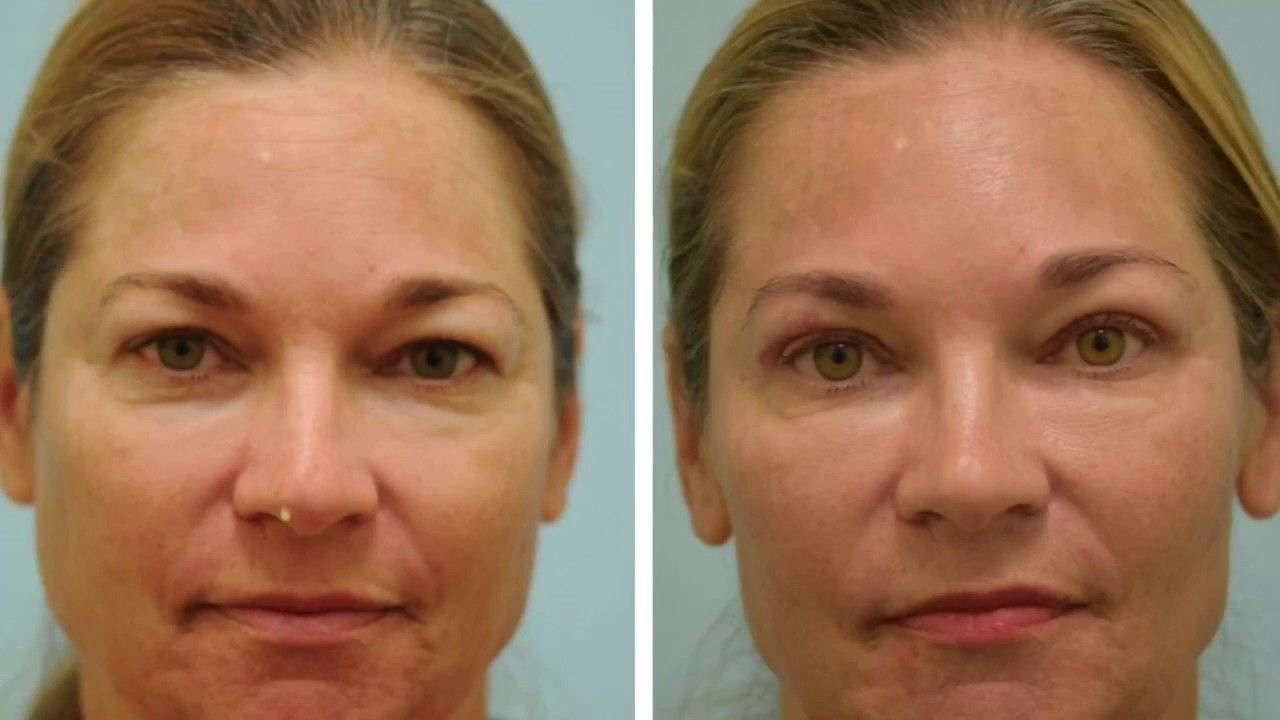 One Week After Upper Blepharoplasty Video And Photos Eyelid