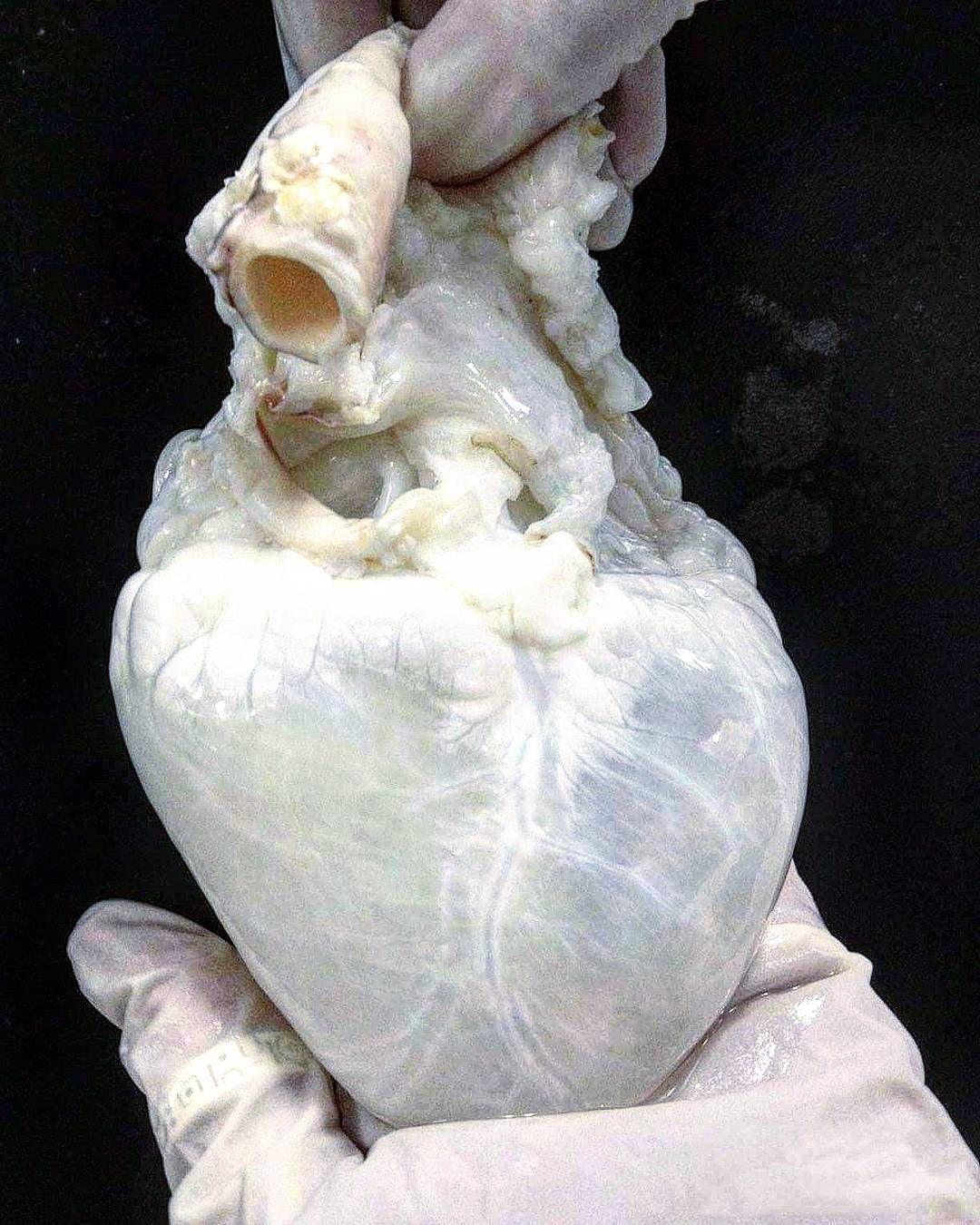 as Herz ist ein 300g schwerer Muskel der unsere Organe mit Blut ...
