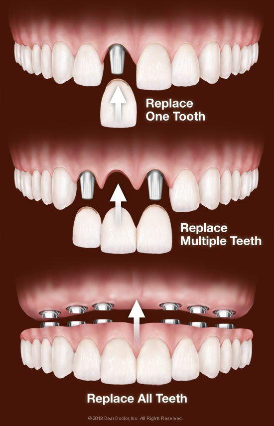 Dental Implants Delray Beach Dentist Dental Implant Procedure Dental Implants Cost Dental Implants