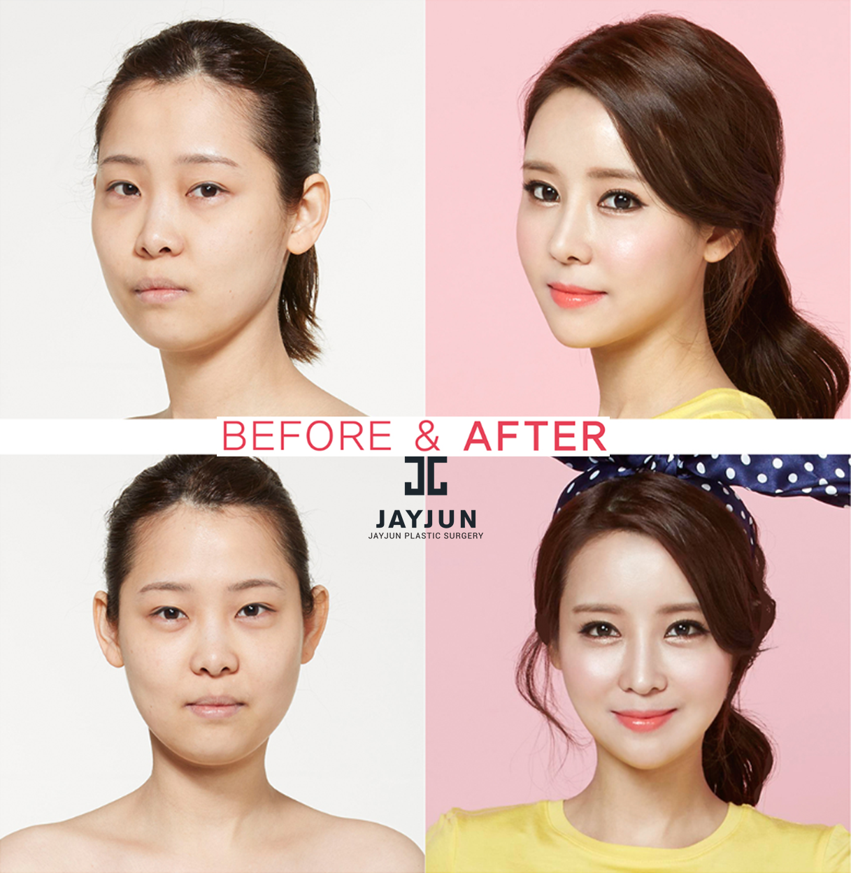 nose surgery in korea rhinoplasty revision in south korea