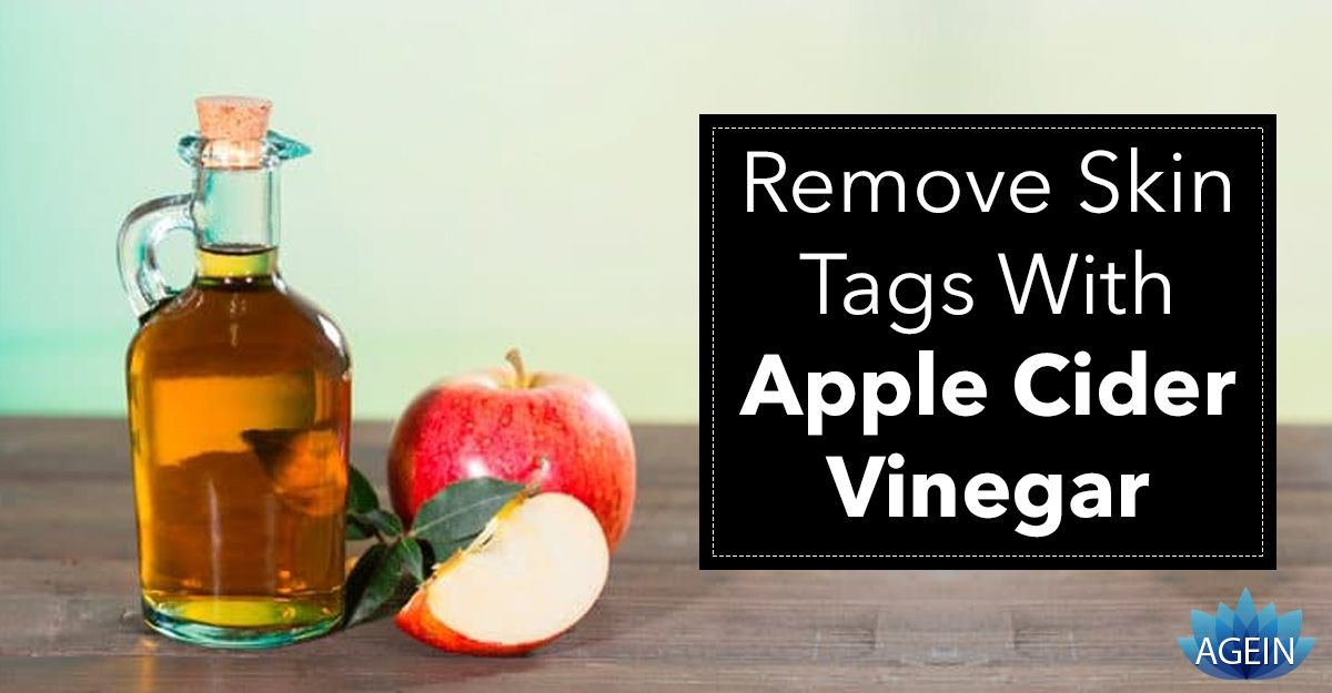 How to remove skin tags five athome remedies and