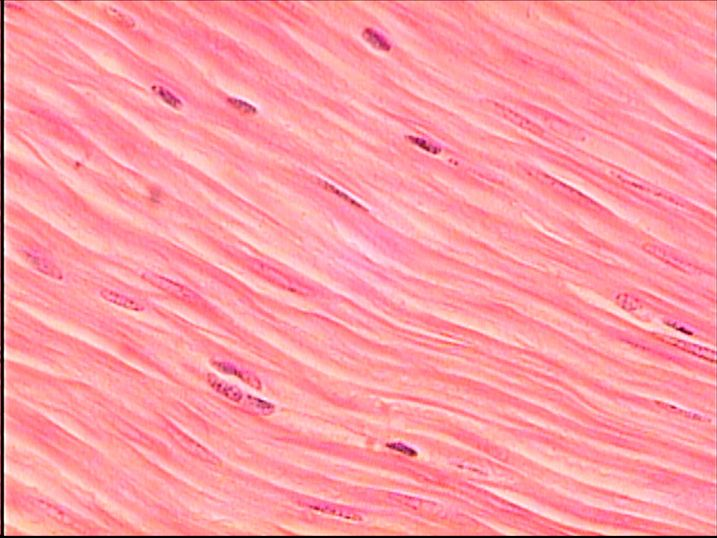 SMOOTH MUSCLE (400X) is non-striated, and the individual muscle ...