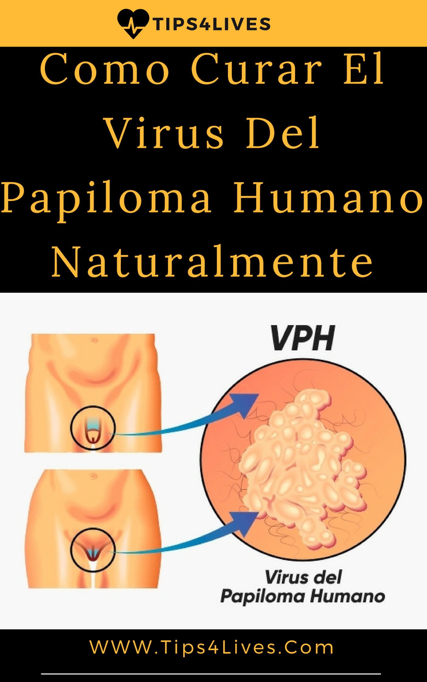 Tienes virus de hacer humano papiloma que si