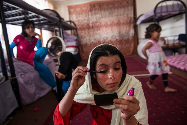 Rika, whose stepmother poured acid on her face when she was a girl, in her room in the Women for Afghan Women shelter in Kabul. Credit Lynsey Addario for The New York Times
