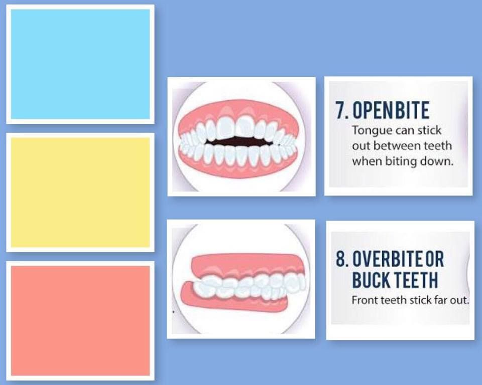 Pin by CARDS DENTAL on overbite Overbite correction