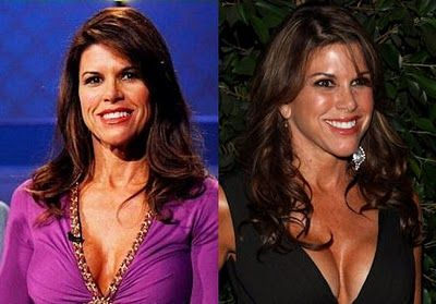 Lynne Curtin Plastic Surgery   Before After, She Does Look Better
