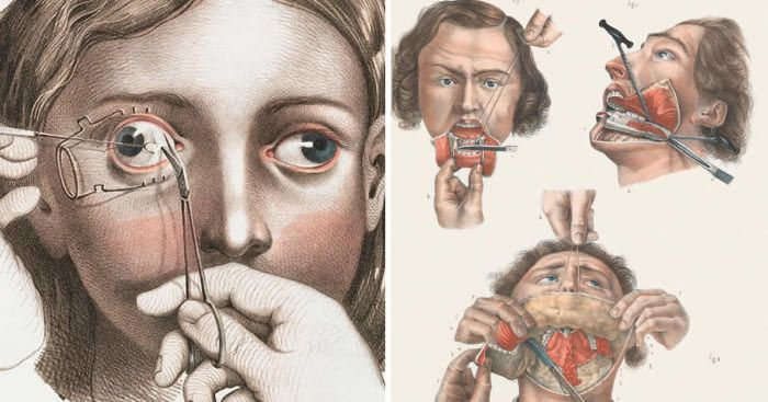 Antique medical scientific illustration high-resolution