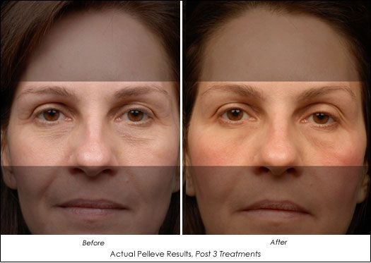 The Pelleve Treatments Can Be Performed In Our Office In Less
