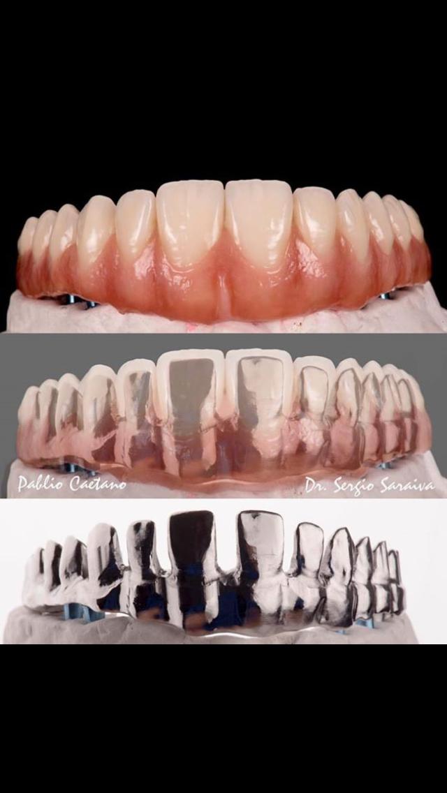 Pin De Cristian Dedios Em Laboratorio Dental Odontologia Protese Dentaria Dentes