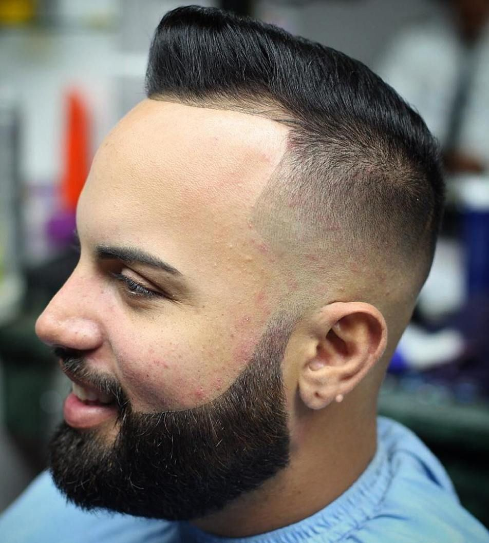 36++ Best haircut for receding hairline trends