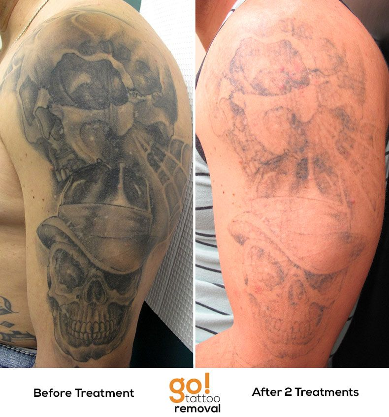 Go tattoo removal lehigh valley laser tattoo removal