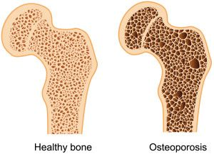 22+ What is the medical definition of osteoporosis information