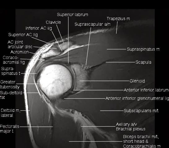 mri anatomy shoulder. www.unidadortopedia.com PBX: 6923370. Unidad ...