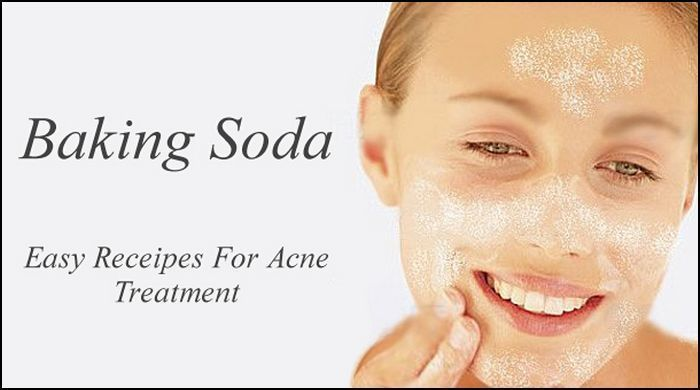 How to get rid of acne overnight with baking soda