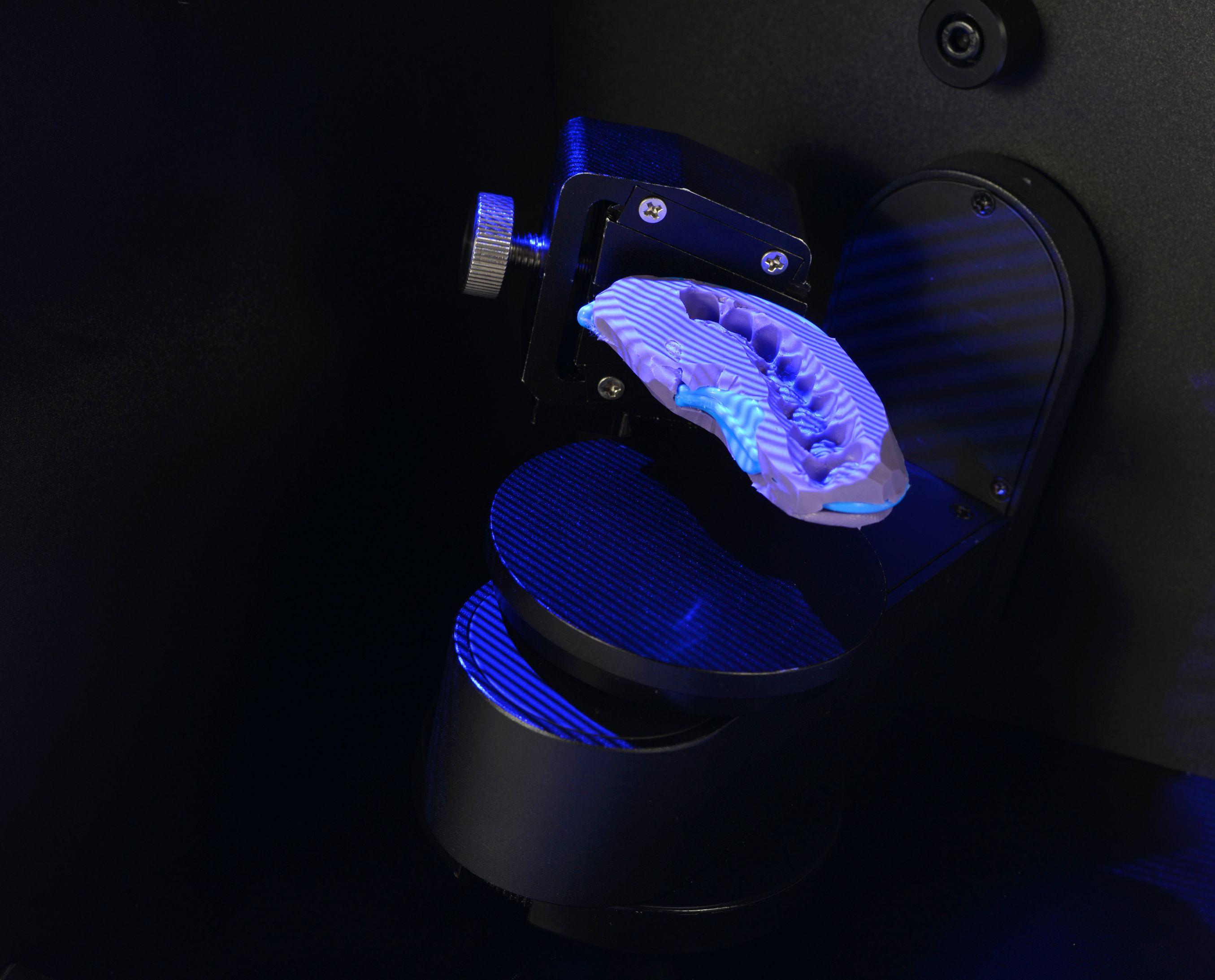 Impression scanning of UP3D dental 3d laboratories scanner