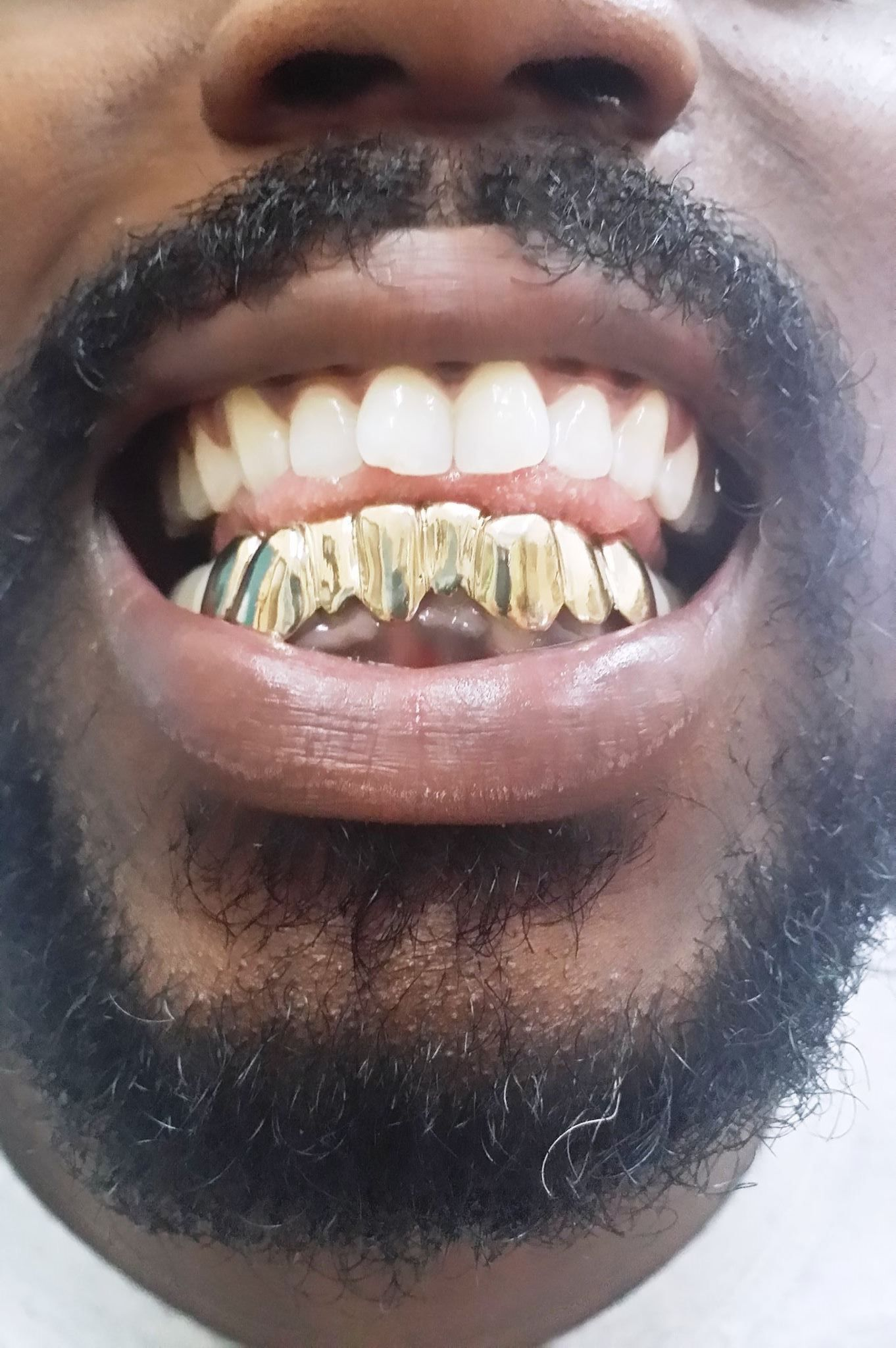 Real Mike Gold Teeth - Jewelry - 8315 NW 22nd Ave, Miami