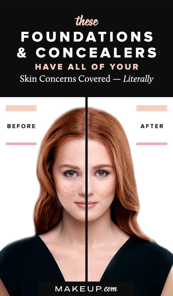 How to Conceal Your Top Face & Body Skin Concerns Skin
