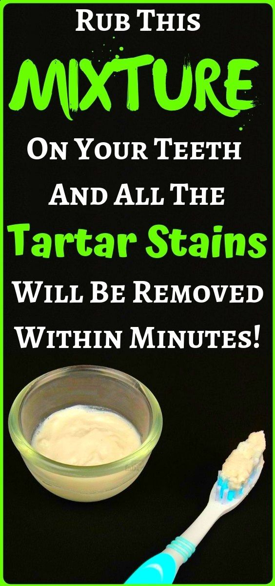 Naturally Whiten Teeth: 10 Ways To Remove Tartar Stains From Your Teeth - health and fitness... Whiten Teeth: 10 Ways To Remove Tartar Stains From Your Teeth - health and fitness...