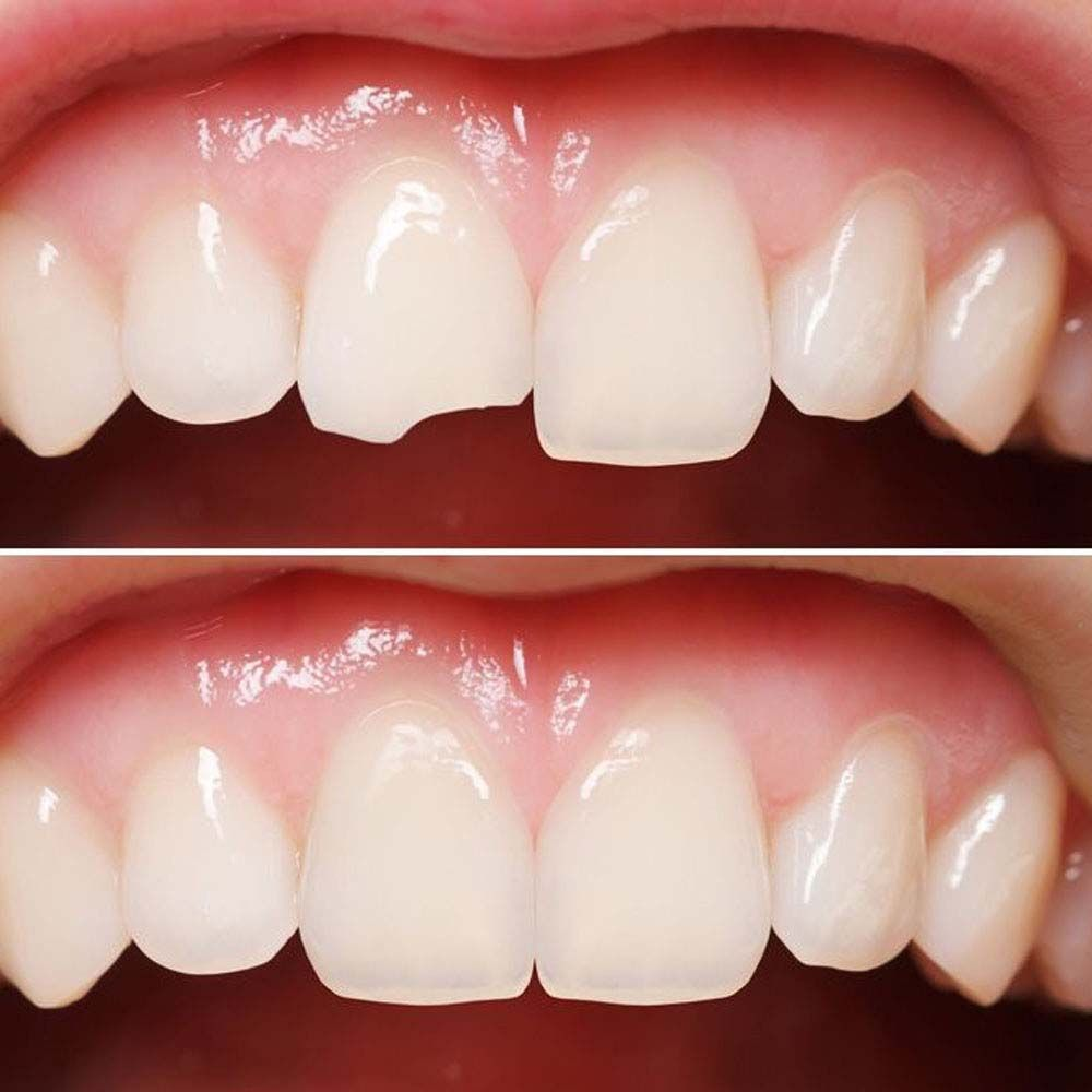 Here S How You Can Fix Your Chipped Tooth With Cosmetic Dentistry At Smileperfectors Tysons Corner Chipped Tooth Broken Tooth Cosmetic Dentistry