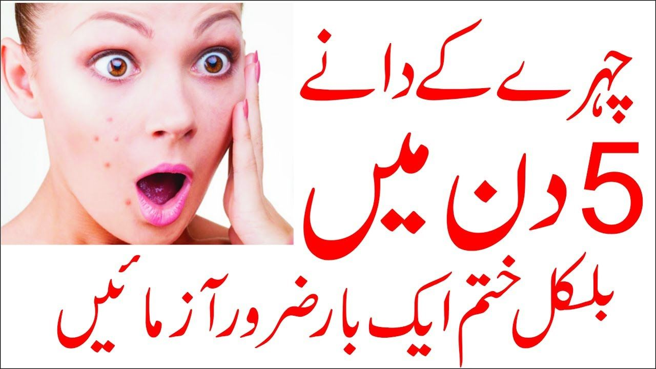How To Get Rid Of Pimples Instantly Pimples Removal On Face At Home How To Remove Pimples Overnight How To Remove Pimples Remove Pimples Overnight Pimples Overnight