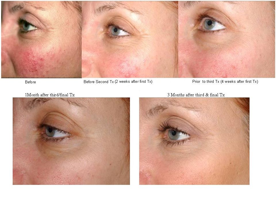 Laser Genesis Before And After Photos Rosacea Skin Care Rosacea