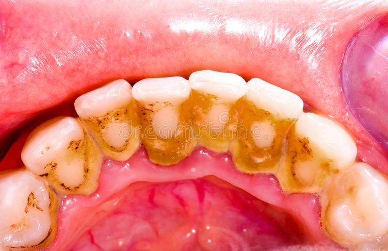 Tooth tartar. Unhealthy denture, tartar on frontal teeth