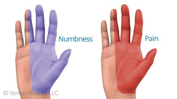 Pin on Carpal Tunnel Syndrome