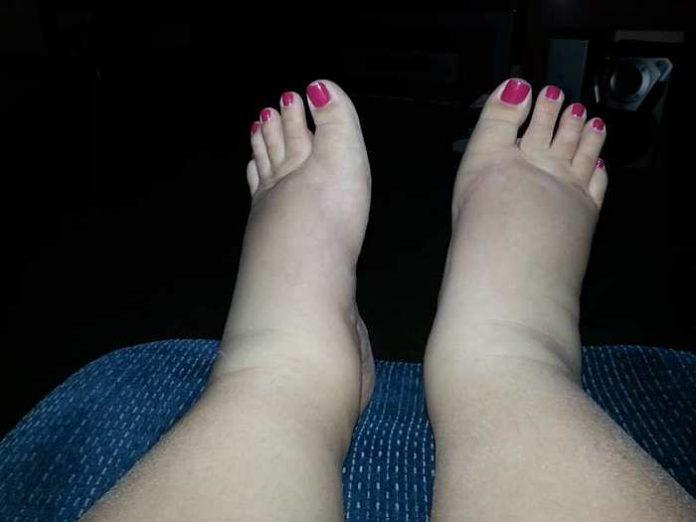 Picioare odihnitoare medicamente efecte secundare