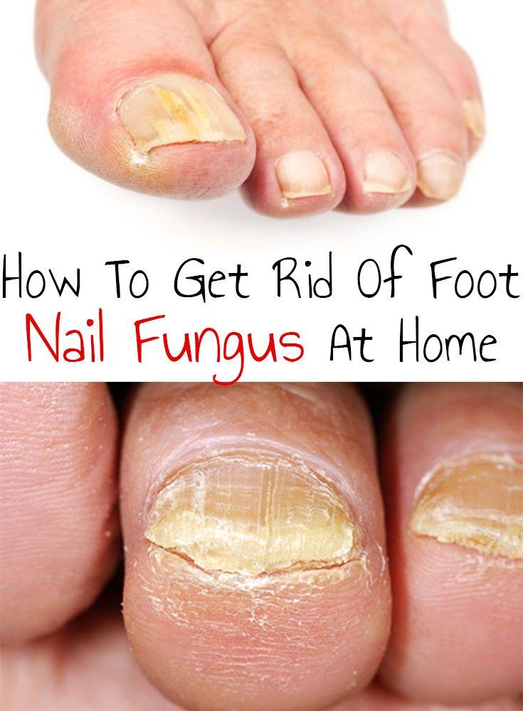 Nail Fungus - How To Get Rid Of Foot Nail Fungus At Home   Feet ...