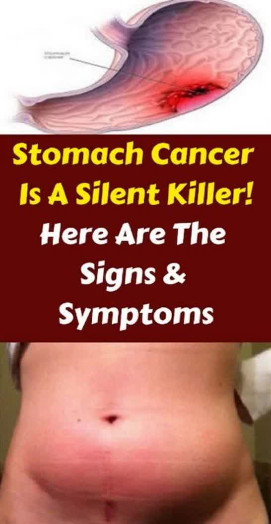 Stomach Cancer Is a Silent Killer ! Here Are The signs & Symptoms !