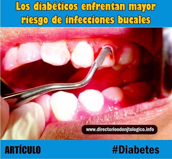 tratamiento dental gratuito para la diabetes
