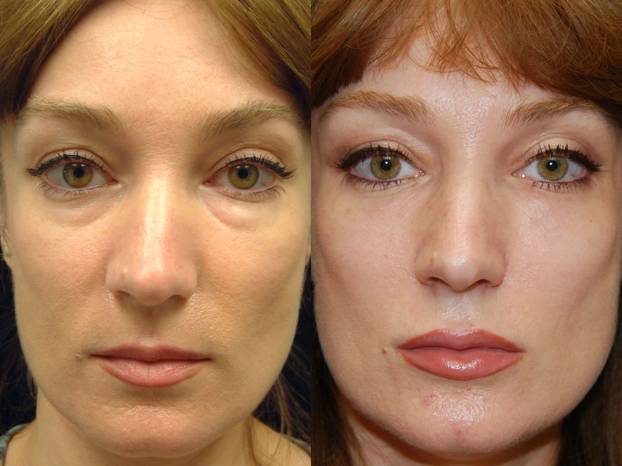 Before and after tear trough fillers | Cosmetic/Plastic