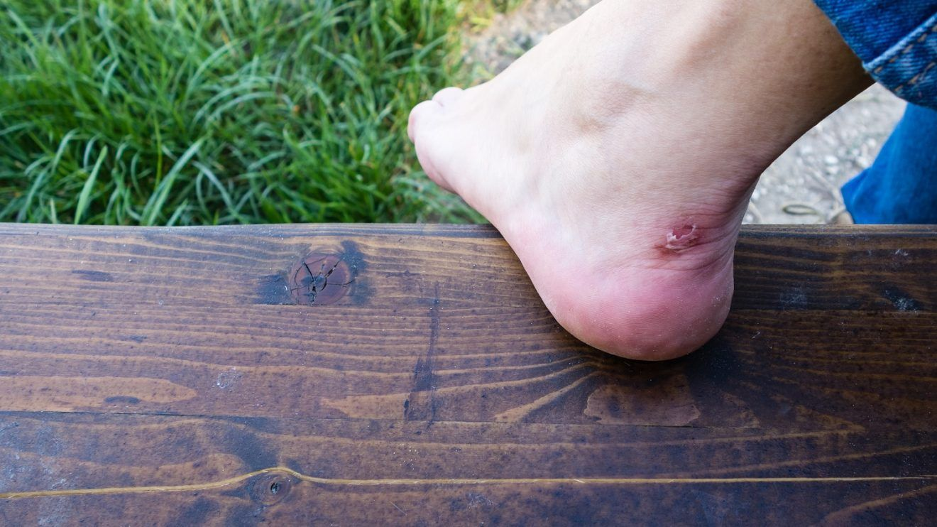 First aid for preppers, blisters, burn, and wounds First