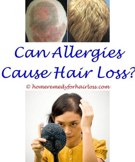 Pin on Hair Loss Tips