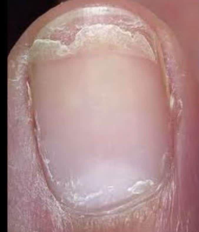Wellen und Dellen im Fingernagel: Was Fingernägel