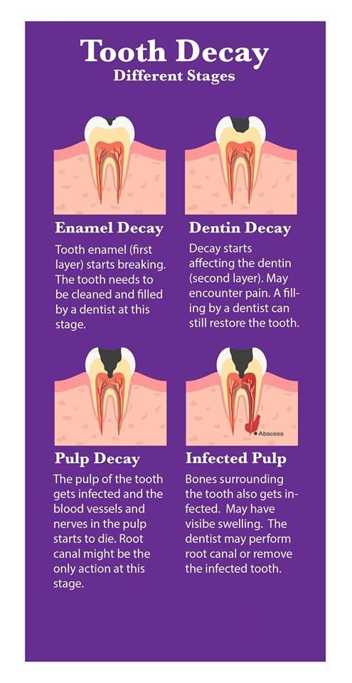 Decay Tooth Last Stage
