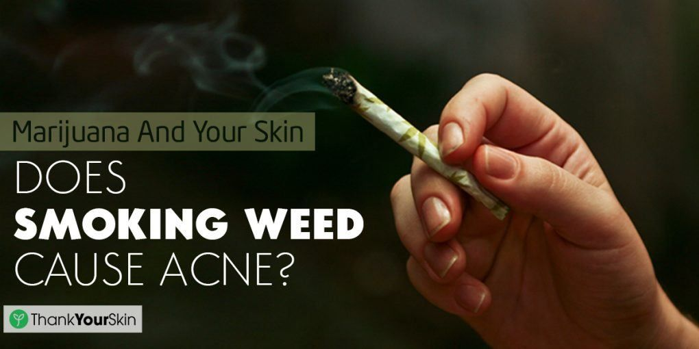 Can weed help acne
