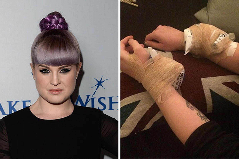 Kelly osbourne before and after kelly osbourne