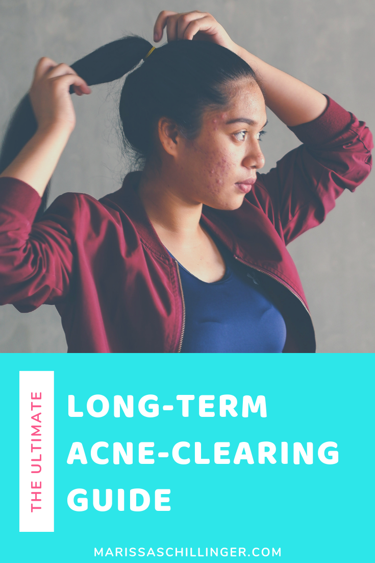 In this blog post you will learn all about how you can clear your acne long-term by taking a natural, holistic approach! Re-pin & also grab your free Acne-Friendly Recipes & Meal Ideas from my website! #acnetreatment #cysticacnetreatment #acneremedieshormonal #cysticacneremedies #hormonalacnetreatment
