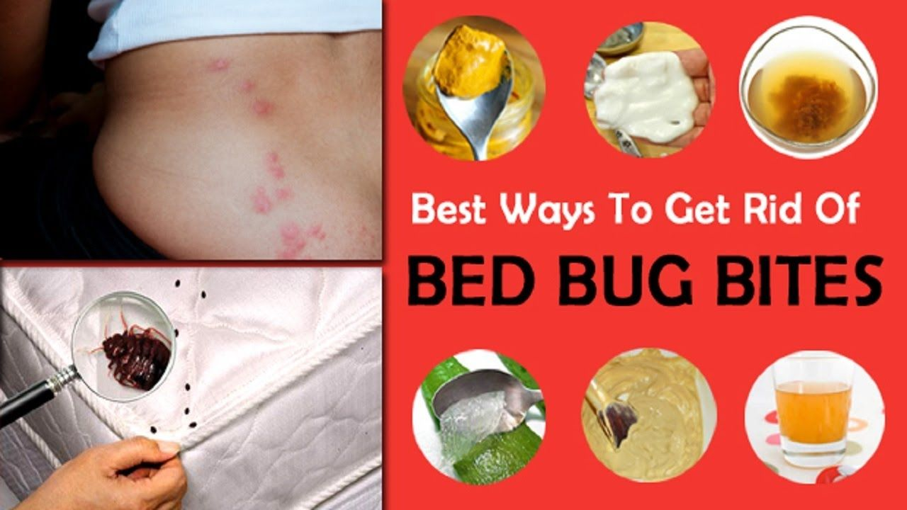 Natural remedy to bed bug bites
