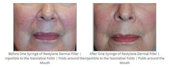 Before & After One Syringe of Restylane Dermal Filler