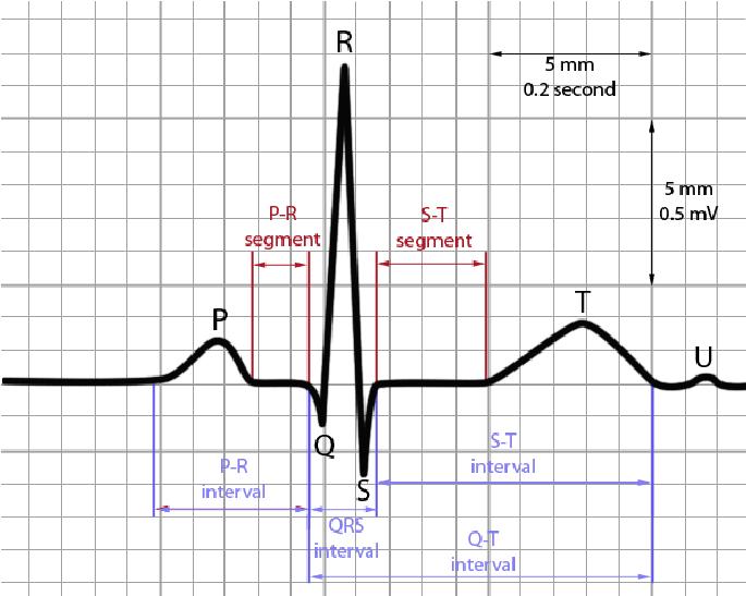 Figure 1 The Ecg Components Cardiology Pr Interval Ekg