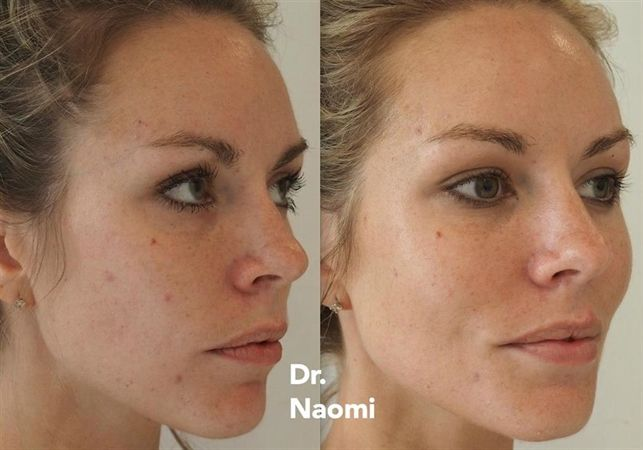Before And After Dermal Filler To Cheeks Be Beautiful