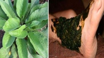 Astuces Archives Topastuces Natural Remedies Healing Heal Broken Bones