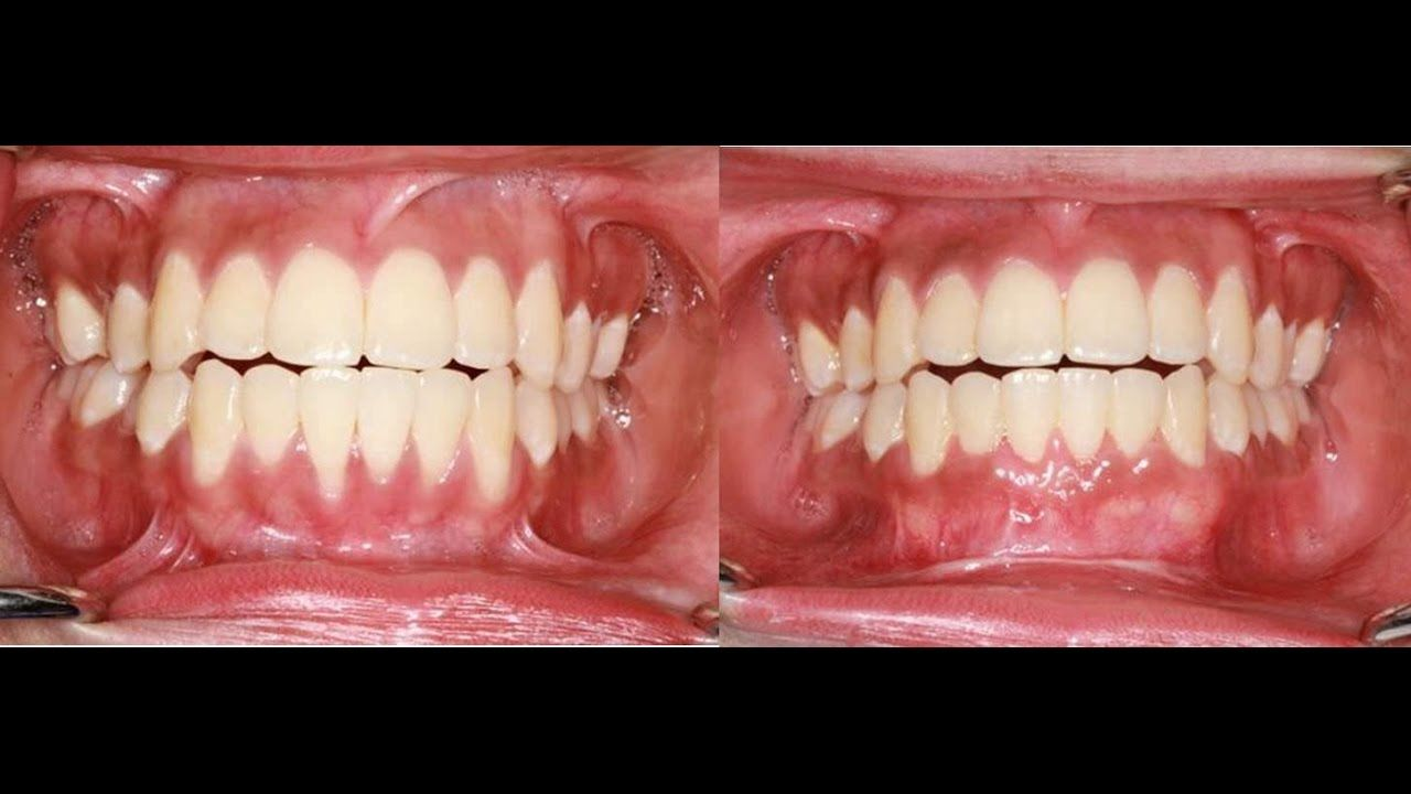 IfYou Have Receding OrUnhealthy Gums, Here Are Proven Solutions IfYou Have Receding OrUnhealthy Gums, Here Are Proven Solutions new photo